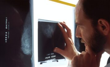 Can cancer be seen on an x-ray?